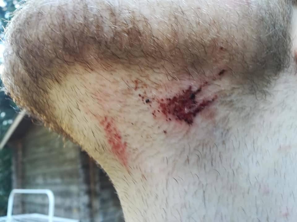 'Policajac je upao u WC i onda me vukao, a prijatelja su tukli'