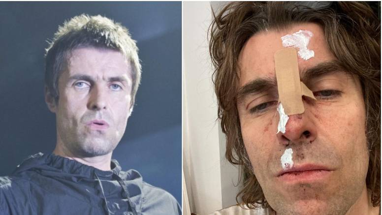 Liam Gallagher u masnicama nakon pada iz helikoptera: 'Sad imam fotku za cover albuma'