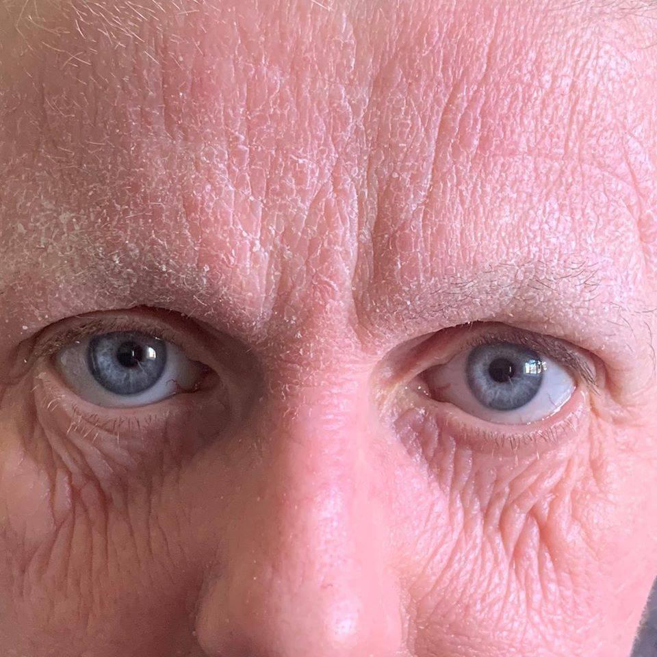 'Lice mi izgleda 20 g. starije, prestala sam uzimati steroide'