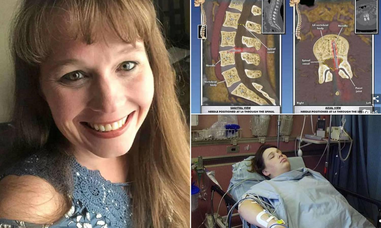 14 godina boli: Ostavili su joj iglu od epiduralne u kralježnici