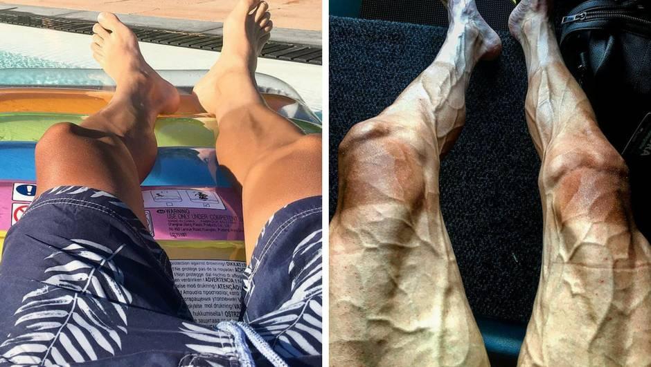 Grozno: Kako izgledaju noge prije i poslije Tour de Francea