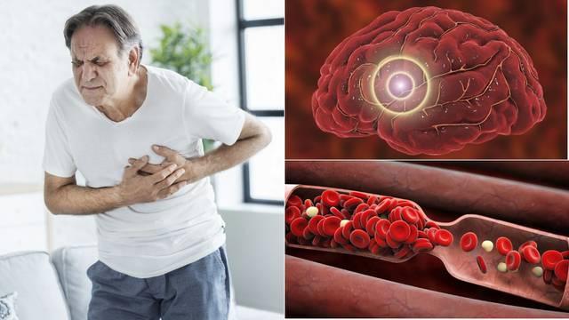 Prepoznajte simptome: Tromb može začepiti žile u srcu, mozgu i plućima, uzrokovati infarkt...