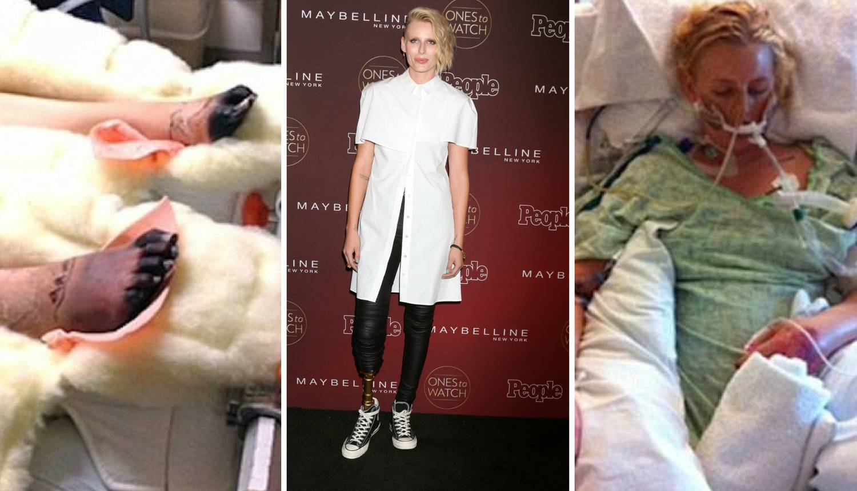 Manekenka izgubila nogu zbog tampona, a uskoro će i drugu