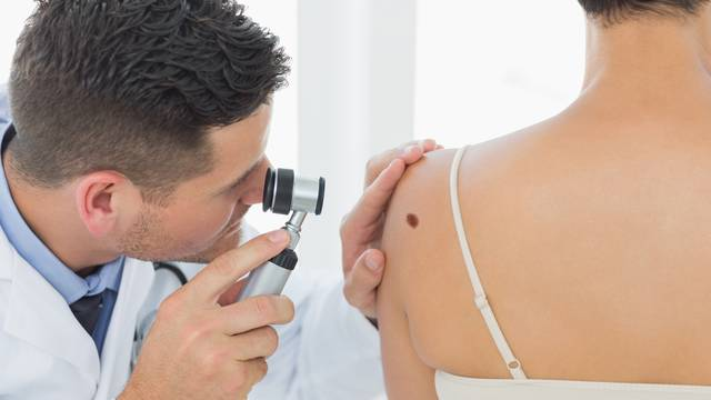 Doctor examining mole on back of woman