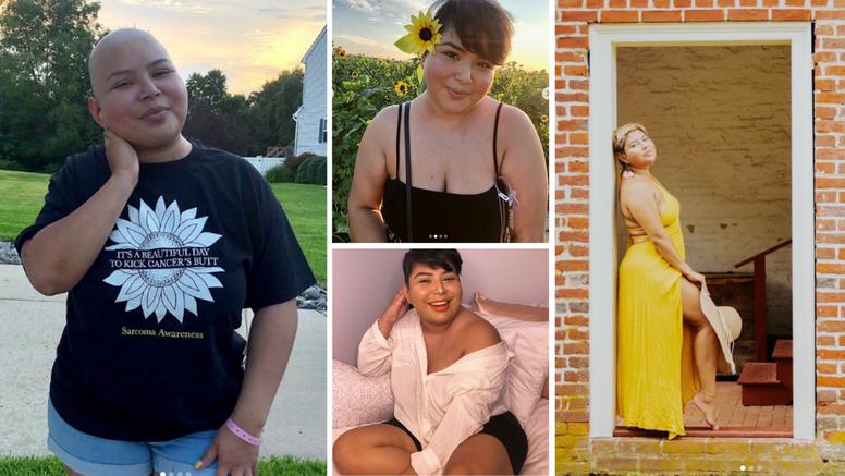 Djevojka (24) mislila da je samo natečena pa joj otkrili tumor: 'Ne zanemarujte simptome'