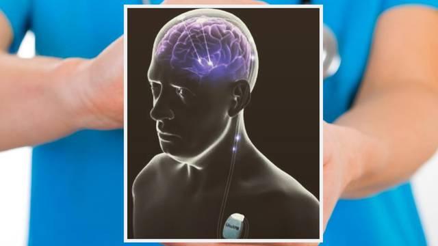Parkinsonova bolest: Pomaže dubinska stimulacija mozga