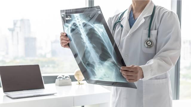 Kako spriječiti ozbiljne komplikacije i zaustaviti bolest na vrijeme