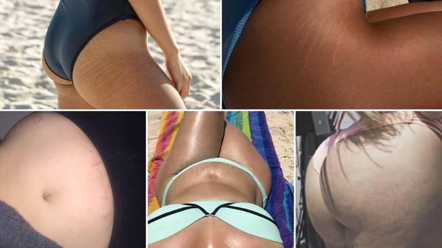11 poznatih ljepotica pokazale strije: 'To je sasvim normalno'