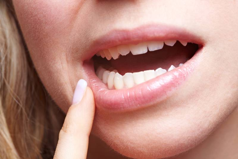 Woman with pain in her gums