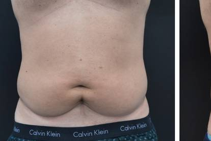 Tabata – metoda za povećanje mišićne mase i smanjenje potkožnog masnog tkiva