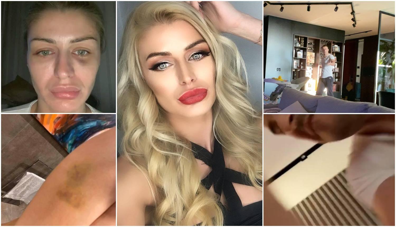 Uznemirujuć video: Manekenka snimila kako muž nasrće na nju