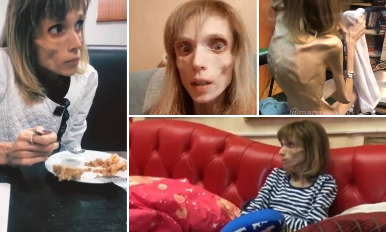 Ima 17 kg, a liječnik joj rekao: 'Možeš glumiti živog mrtvaca'