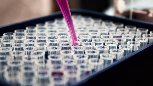 Otkrivene varijante gena koje se mogu povezati s najtežim oblikom Covid-19