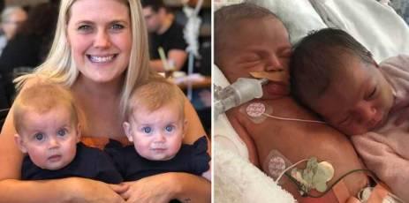 Žena sa dvije vagine rodila je blizanke: 'Imam i 2 maternice'