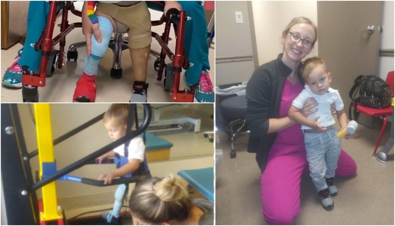 Neopisiva sreća zbog šarene proteze: 'Sad i ja mogu hodati'
