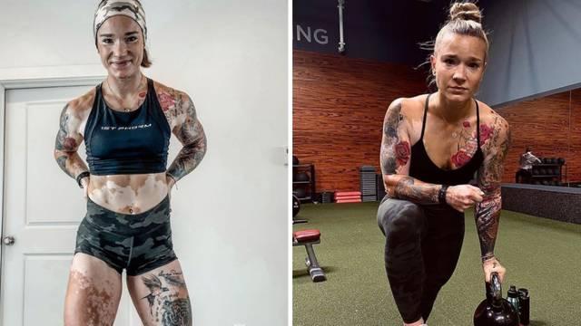 Život s vitiligom: Zbog vježbe i bodybuildinga sam prihvatila nesavršenosti i sad sam model