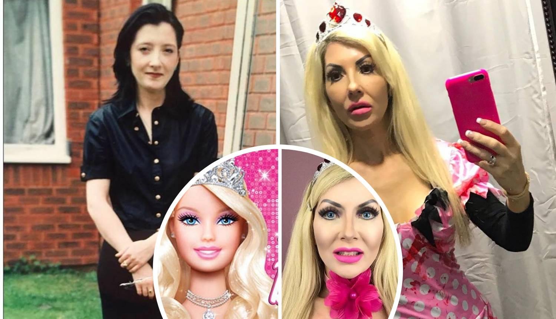 Britanka je potrošila 250.000 kuna da bi izgledala kao Barbie