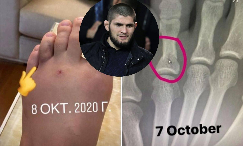 S ovakvim stopalom je uspio pobijediti? Khabib objavio sliku slomljenog prsta i šokirao sve