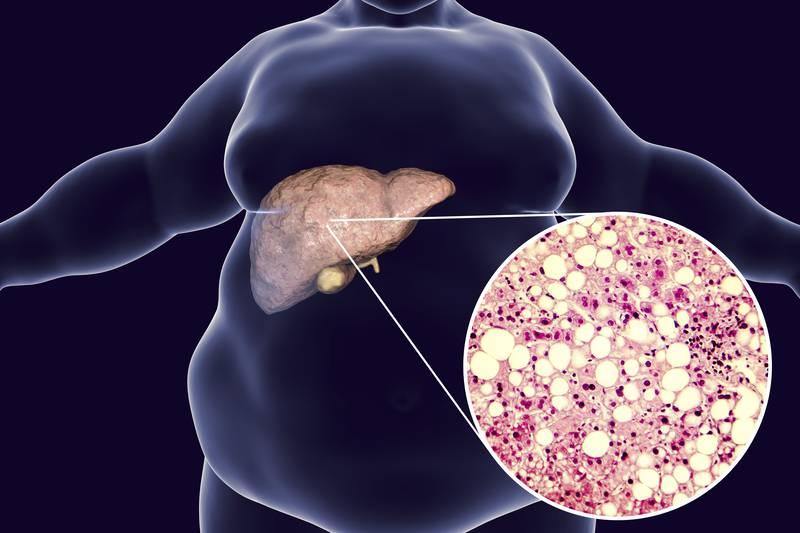 Simptomi masne jetre su tihi, a izaziva rak, moždani udar...