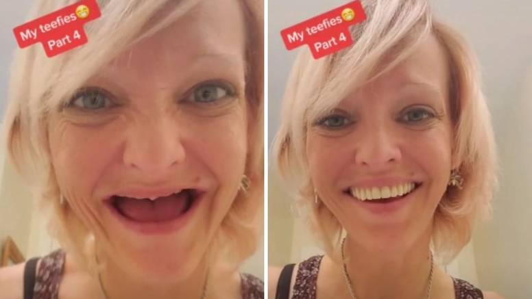 Imam 38 godina i ostala sam bez svih zuba, proteza nije bauk