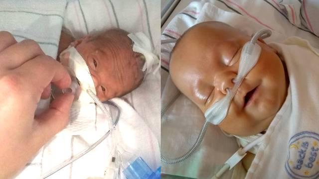 Rođen prerano i 'bez crijeva', liječnici su rekli da nema nade