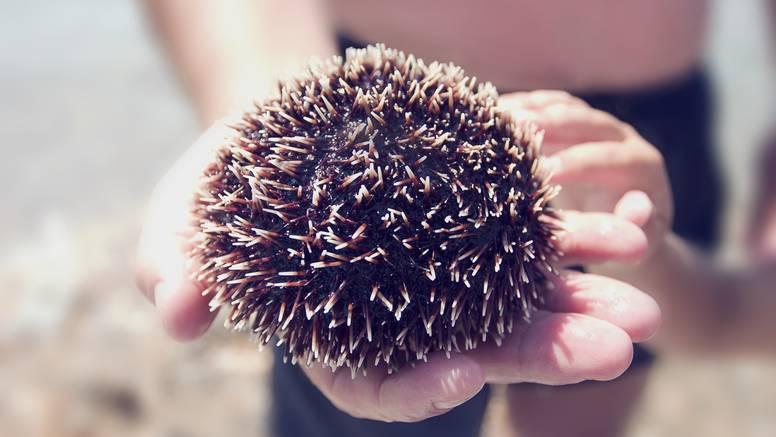 Što kada stanemo na ježinca, ubode nas osa ili opeče meduza