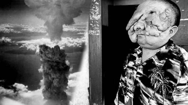 Život s radijacijom: Ispred kuća gledali su nuklearne eksplozije