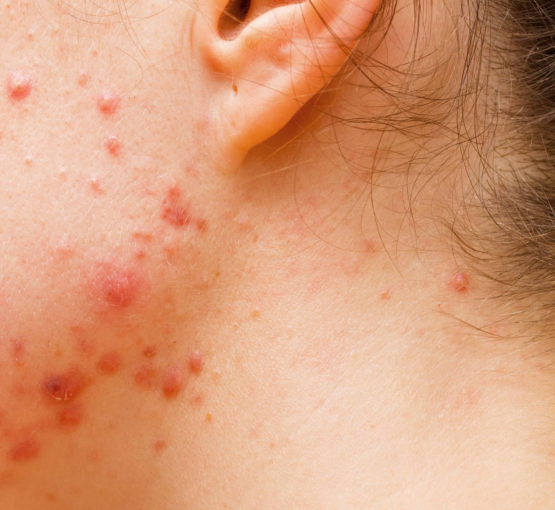 Četiri sigurna tretmana kojima se 'brišu' uporni ožiljci od akni