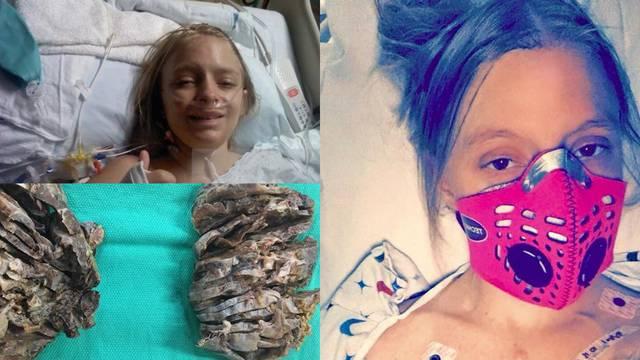 Agonija: 'Ovo su mi već treća pluća, a imam samo 25 godina'