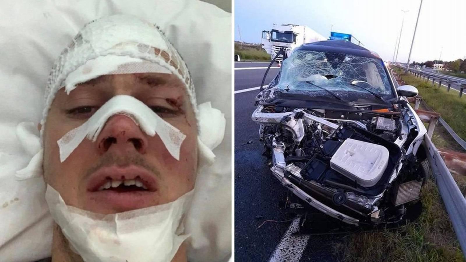 Zabio se u kamion na autocesti kraj Novske: Jedva su mi spasili jezik, imam krvarenje u mozgu