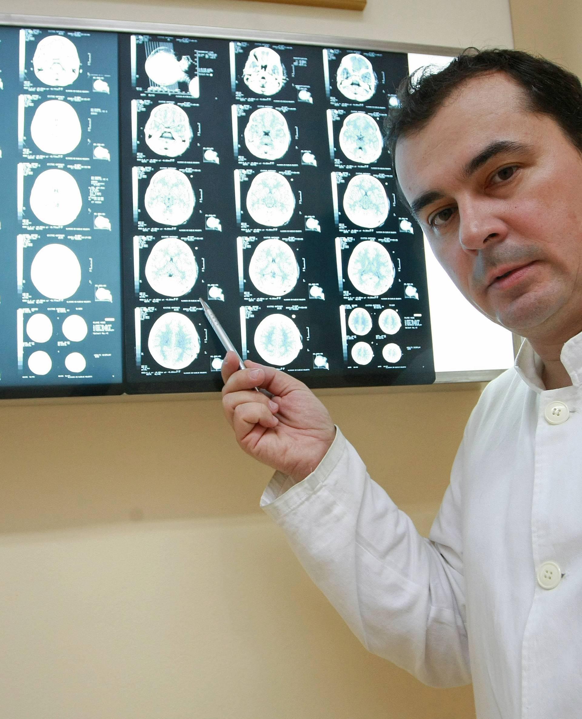 Curicu s metkom u glavi neće operirati: Može ostati bez vida