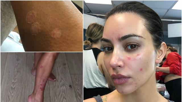 Kardashianka šokirala fanove: Pokazala kožnu bolest i na licu