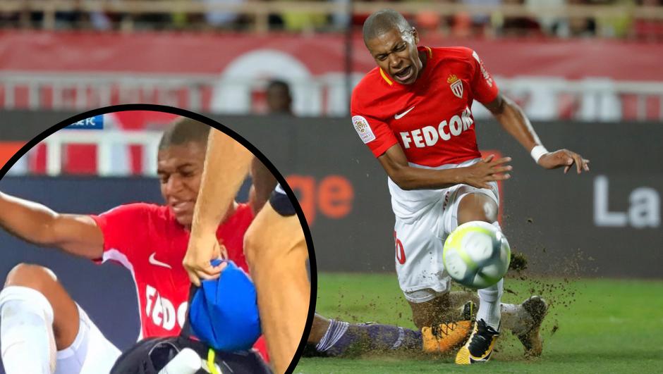 Šok za Monaco: Mbappé morao izaći iz igre, stradalo koljeno?!