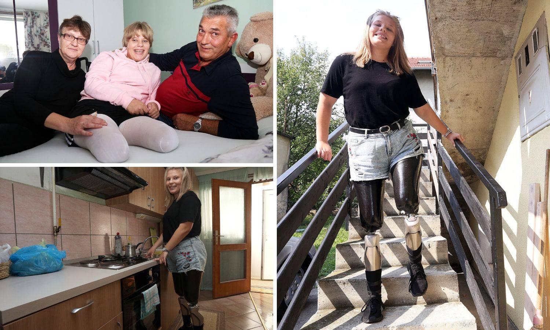 Hrabra Anita iz Sesveta: Ljudi plaču kad vide moje nove noge