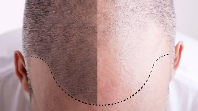 Što dulji radni tjedan, to je veći rizik da ćete ostati bez kose