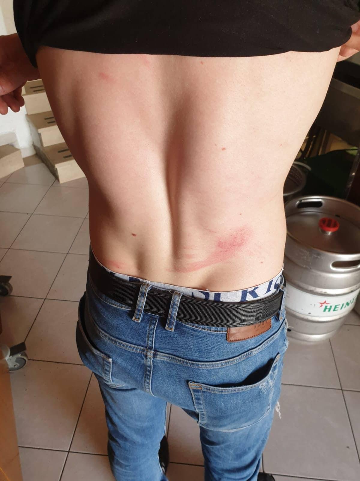 Nasilnici prebili četiri sezonska radnika: Urlali 'Tko je Srbin?!'