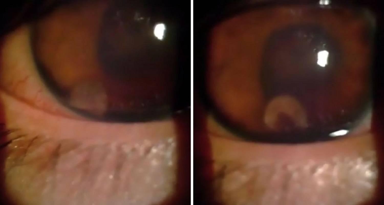 Crv u oku