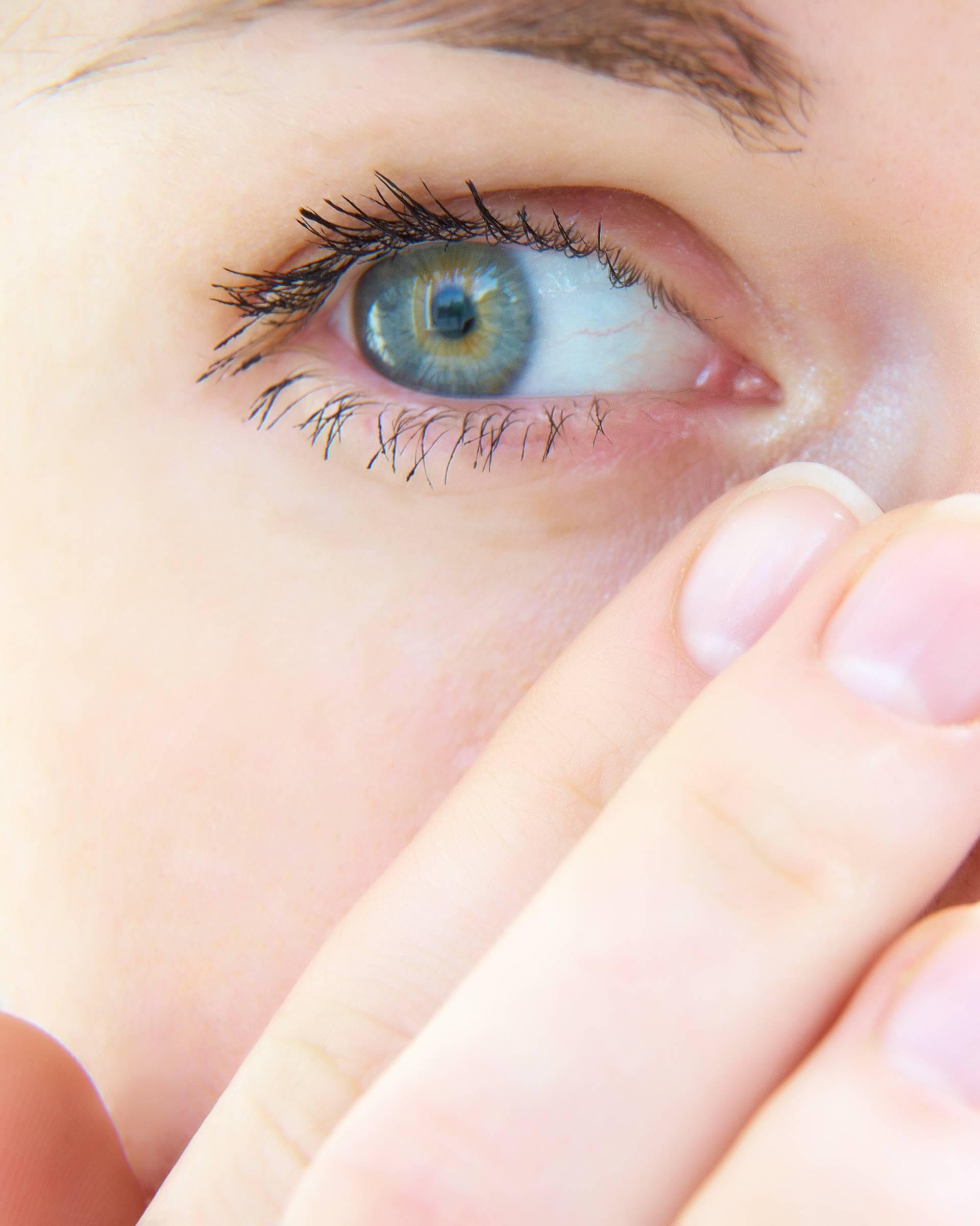 Virusni konjunktivitis - vrlo je zarazan, prenosi se kontaktom