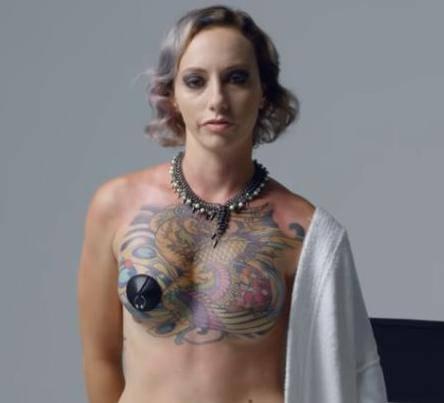 Preživjele rak dojke pa su se istetovirale i pokazale ožiljke