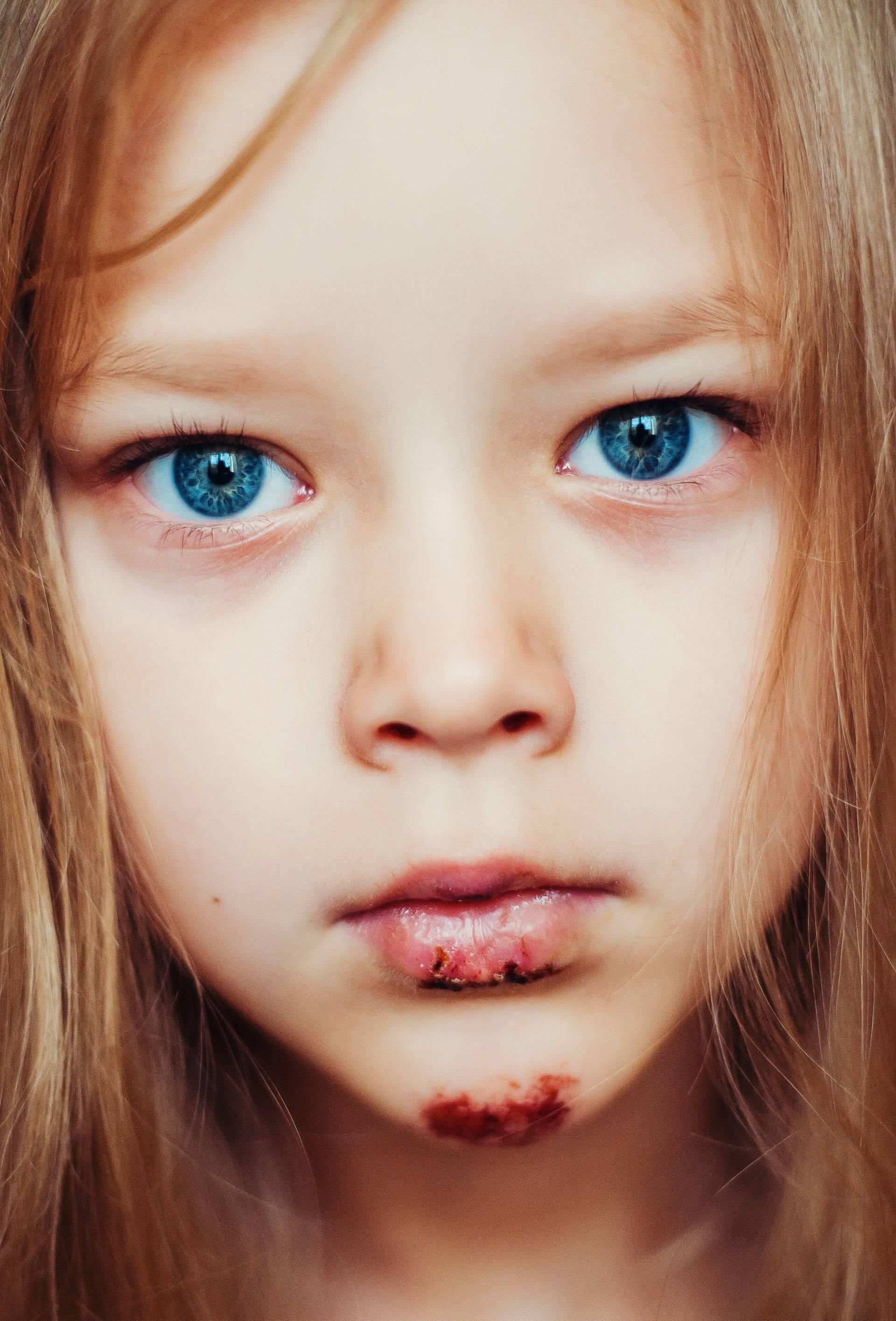 Uz pomoć gumenog bombona otkrijte je li dijete slomilo kost