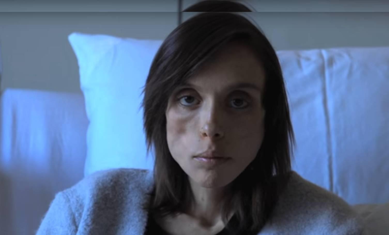 Živi s anoreksijom 15 godina: 'Zbog  nje se osjećam sigurno'
