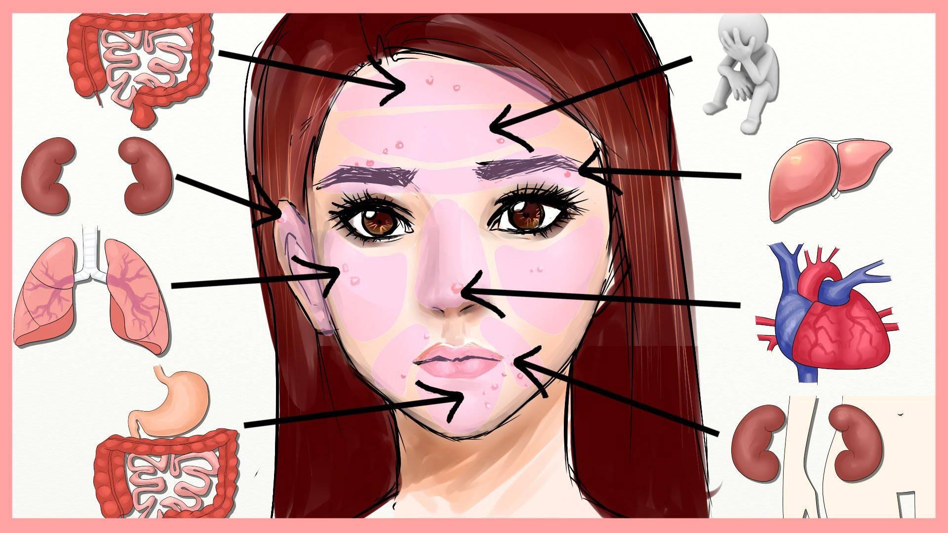 Kineska karta lica: Mjesto akni otkriva problem sa zdravljem