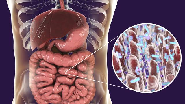Bakterije u crijevima mogle bi biti 'krivac' za kronični umor
