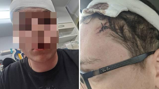 Napadač s veslom iz Umaga je bivši policajac koji je udaljen iz službe zbog povrede dužnosti