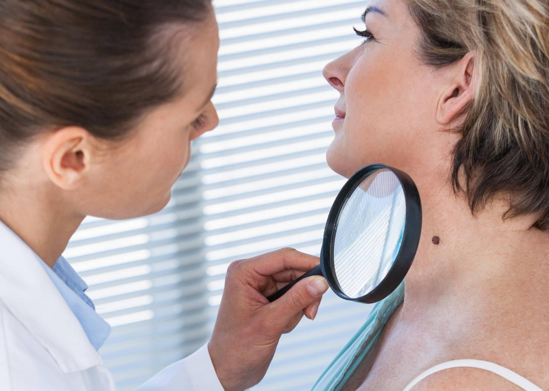 Postoji šest različitih madeža, a evo što upućuje na melanom