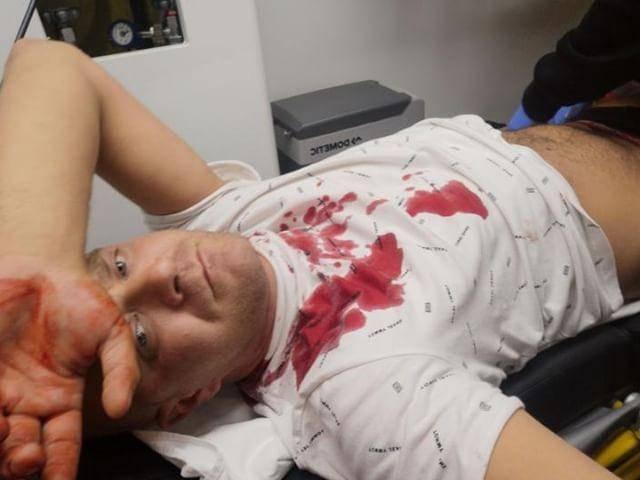 Dok traže napadača, Denis je još u bolnici: 'Nisam  dobro...'