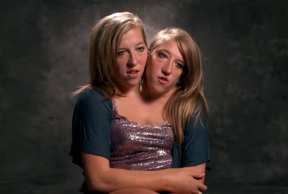 Sijamske blizanke sijamske blizanke Abigail i Brittany Hensel