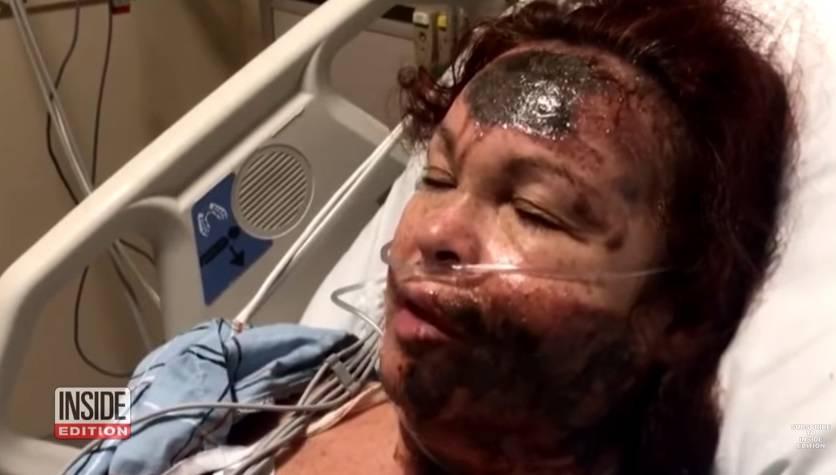 Sama se polila kiselinom pa izmislila da ju je napala žena