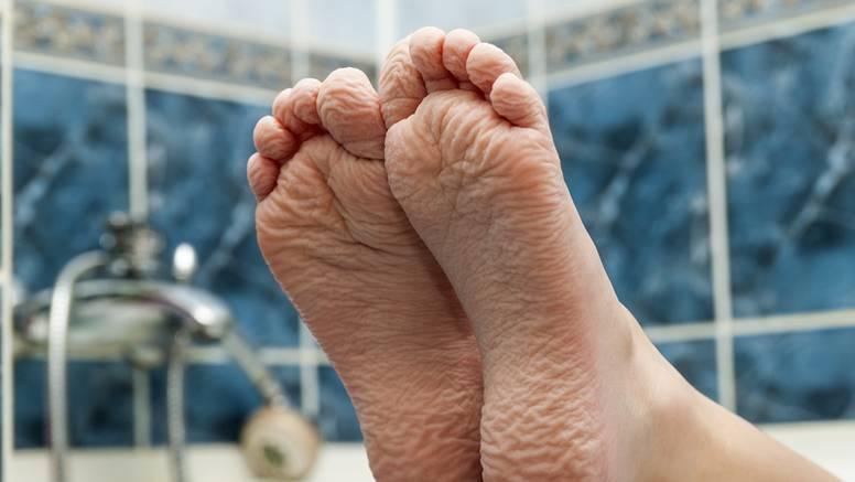 Liječnik objasnio zašto stopala znaju imati neugodan miris: 'Ali, to je zapravo dobro za vas'