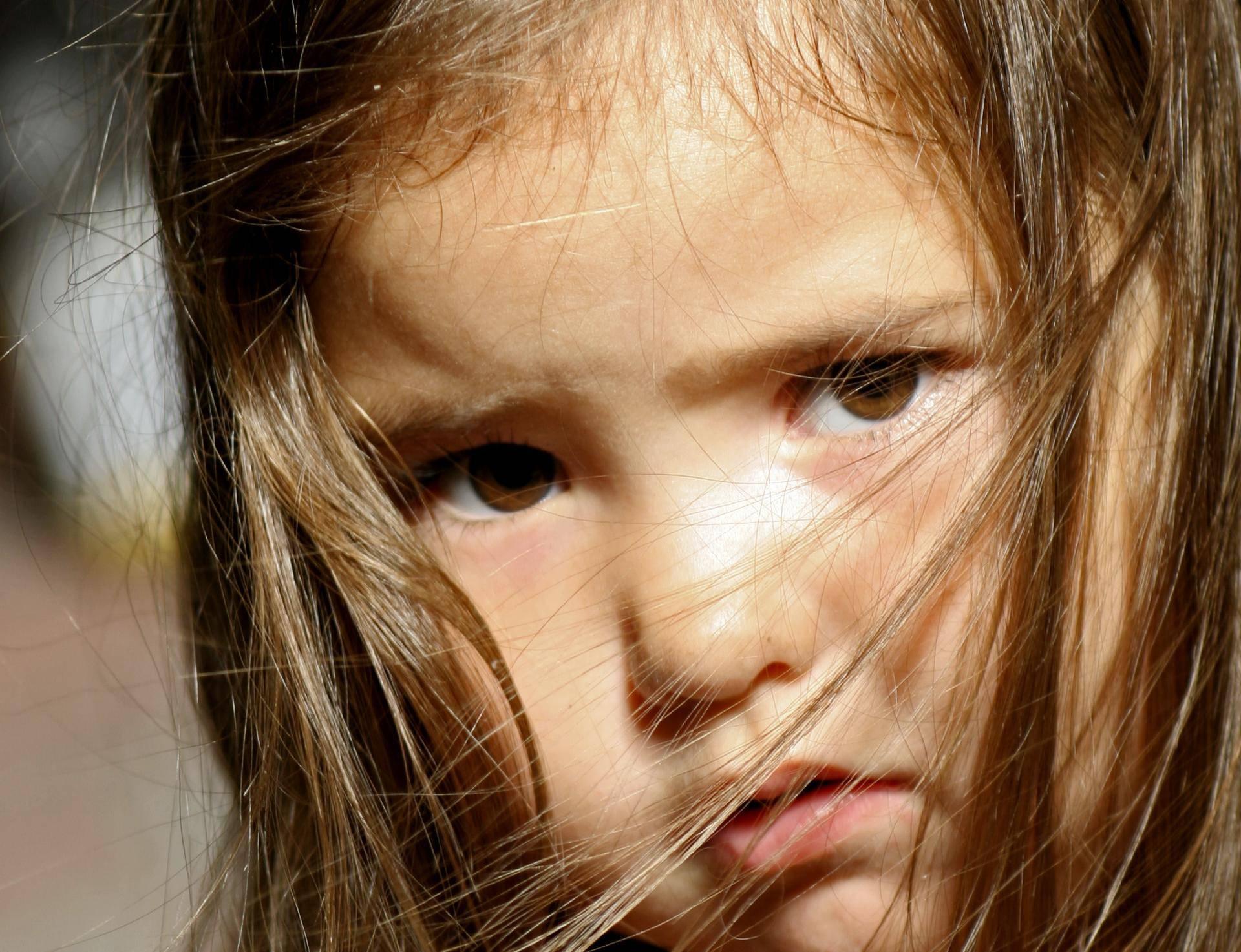5 najčešćih nezgoda kod djece - evo kako ih možete spriječiti